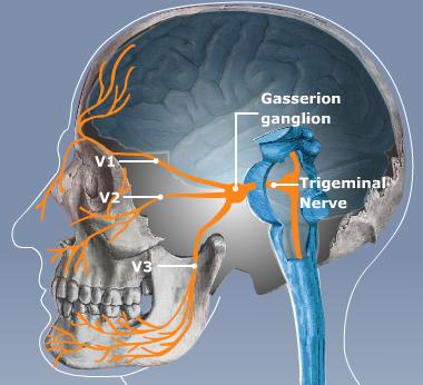 Photo of ألم العصب مثلث التوائم Trigeminal Neuralgia