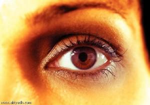 الهالات السوداء تحت العينين
