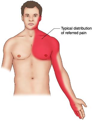 ألم الذبحة الصدرية