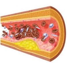 Photo of ارتفاع الدهون الثلاثية Triglycerides