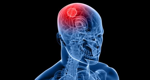 Photo of الجلطة الدماغية أو السكتة الدماغية  Stroke