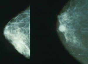صورة أشعة سينية تبين شكل الورم السرطاني في الثدي(يمين) والثدي الطبيعي(يسار)