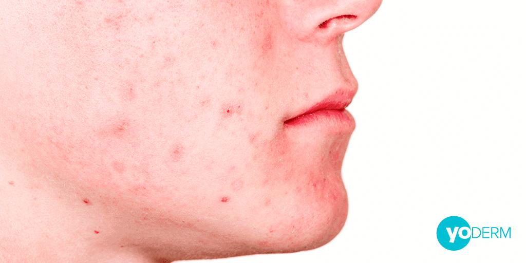 mild-acne