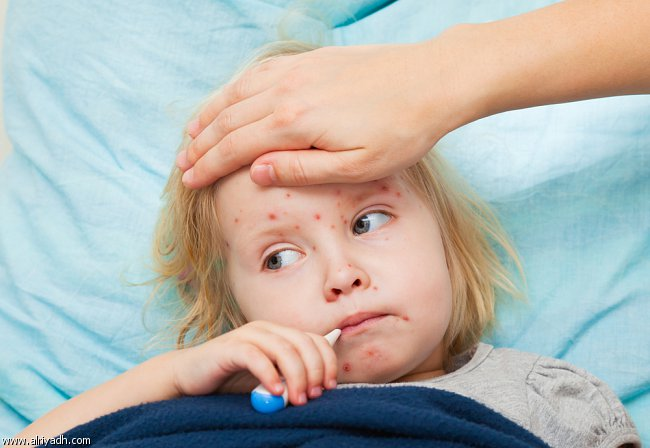 Photo of الحصبة أعراض وعلاج حالات الحصبة Measles