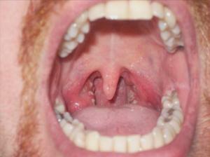 التهاب الجيوب الأنفية هو واحد من أهم أسباب السعال المزمن