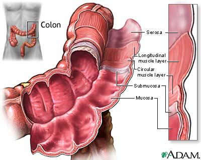 Photo of سرطان القولون أسباب وأعراض سرطان القولون