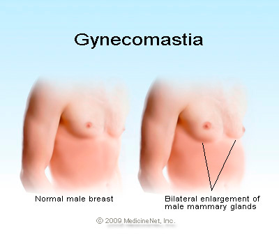Photo of 7% من الرجال يعانون من كبر حجم الثدي ويبحثون عن حل