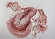 Photo of معلومات تهمك عن سرطان الرحم