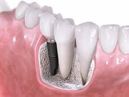 عملية غرس الأسنان لتعويض السن المفقود