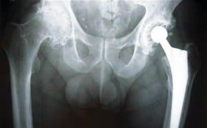 مفصل الحوض الصناعي يرفع خطر الإصابة بالسرطان