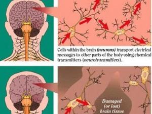 عقار للسرطان يعكس اعراض الزاهيامر
