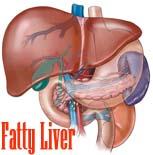 مرض السكري و الكبد الدهني