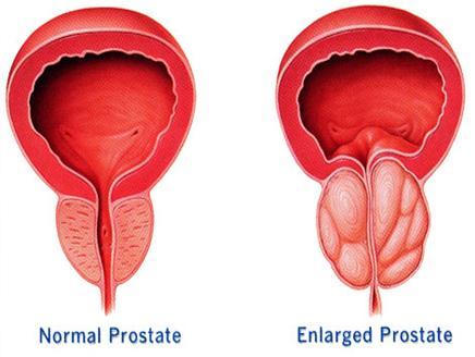 Photo of علاج سرطان البروستاتا بعقار الأندروجين لا يسبب الوفاة بأمراض القلب