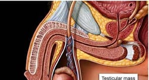 Testicular-Cancer-treatment2