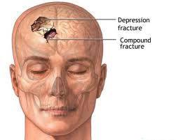 كيف نتعامل مع إصابات المخ