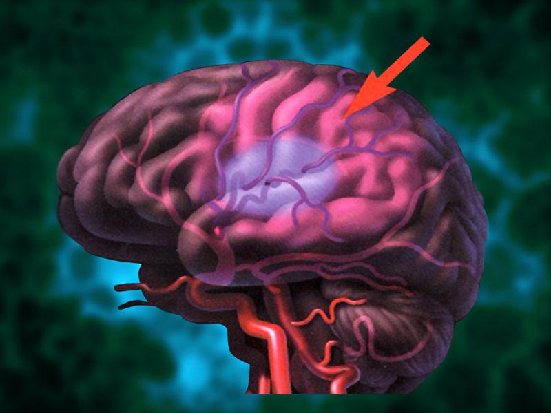 تبريد الدماغ يفيد بعلاج الجلطة الدماغية
