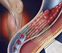 التخثر الوريدي قد يمتد من الساق ليصيب القلب و الرئتين