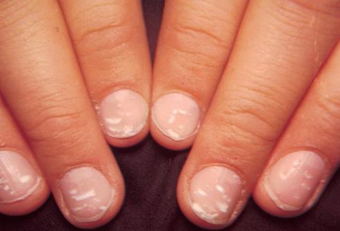 ما هي أسباب وعلاج ظهور خطوط ونقاط بيضاء على الأظافر