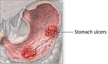 Photo of قرحة المعدة والامعاء القرحة الهضمية peptic ulcer