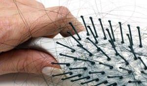 علاج تساقط الشعر عند مرضى السكر