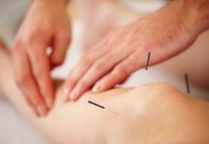 acupuncture-douleur-410