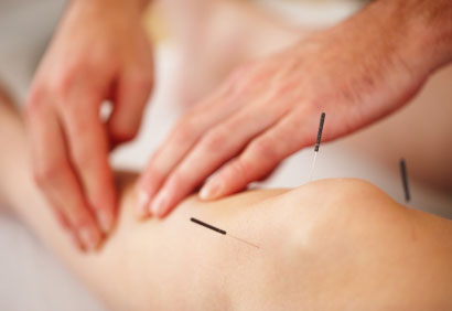 Photo of آثار الوخز بالإبر acupuncture ضد الألم