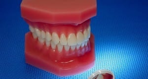 Photo of a Mouth Model and a Oral Mirror - Oral Health Related