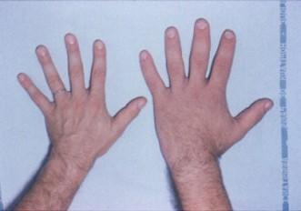 Photo of تضخم النهايات الاسباب والاعراض والعلاج Acromegaly