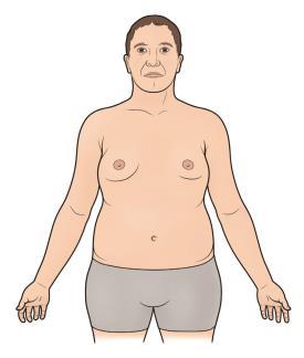 Photo of متلازمة كلاينفلتر Klinefelter's Syndrome