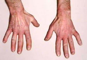 ظاهرة رينود ماهي وما اسبابها وعلاجها Raynaud's disease ؟