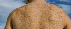Addison-Disease