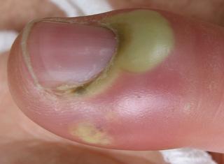 أسباب وعلاج داحس الظفر Paronchyia