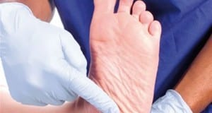 01-Prevention-Diabetic-foot-300x224