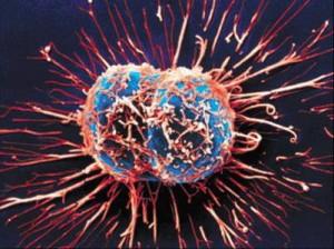 Photo of الخلايا السرطانية على ماذا تتغذى ؟