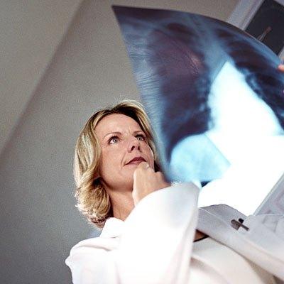 Photo of سرطان الرئة يقتل النساء أكثر من سرطان الثدي