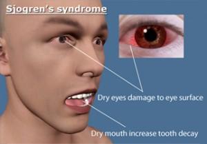 sjogrensyndrome