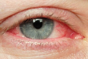 istock_photo_of_eye_with_redness