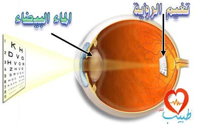 Photo of ما أنسب وقت لإجراء عملية الماء البيضاء فى العين cataract surgery ؟