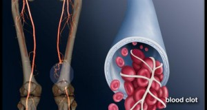 deep-vein-thrombosis-s1-photo-of-blood-clot-in-leg