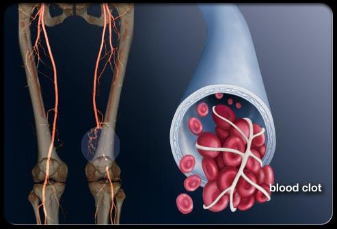 Photo of جلطة الأوردة العميقة Deep Vein Thrombosis