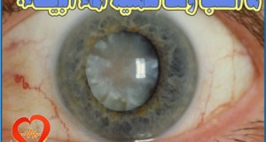 georgia-cataract-surgery