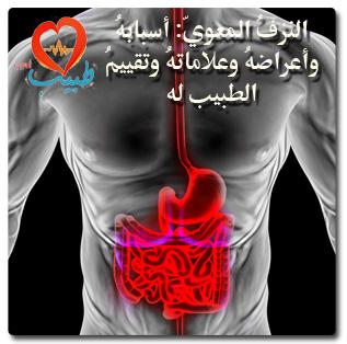 Photo of النزيف المعوي: أسبابه وأعراضه وعلاماته