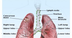 lung-cancer new