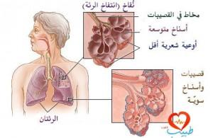 طبيب عرب تنفس 1