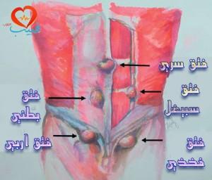 طبيب عرب جراحة 2