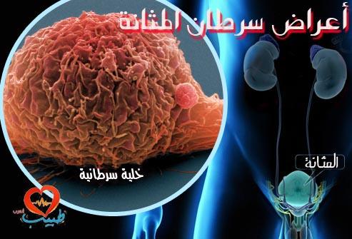 Photo of أعراض سرطان المثانة