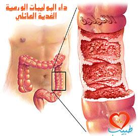 طبيب ع هضم 1
