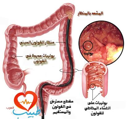 طبيب ع هضم 2