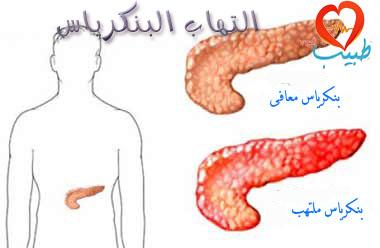 Photo of التهاب البنكرياس الحاد: أسبابه وأعراضه وتشخيصه