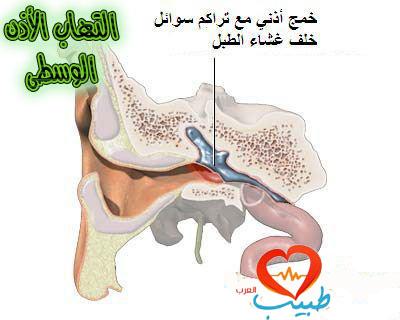 Photo of التهاب الأذن الوسطى ، الأعراض والعلاج والمضاعفات